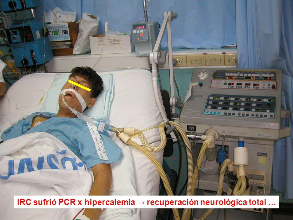 IRC sufrió PCR x hipercalemia recuperación neurológica total …