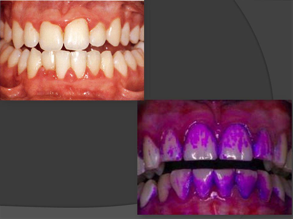 Mayor retención de placa dental