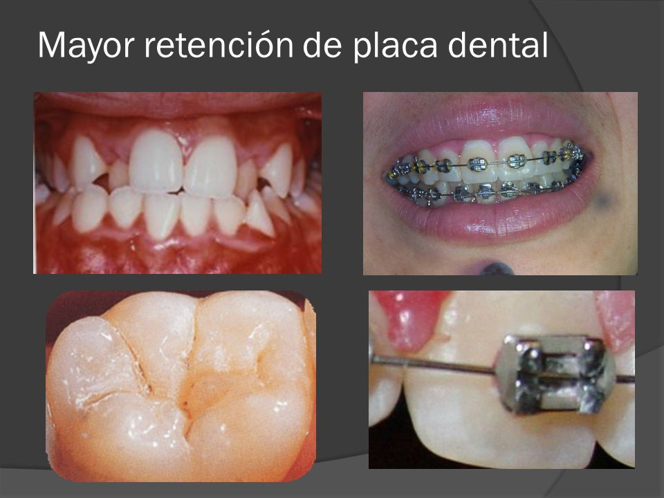 Mayor retención de placa dental