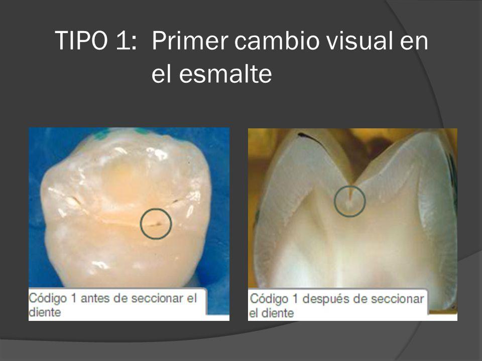 TIPO 1: Primer cambio visual en el esmalte