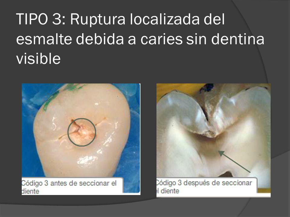 TIPO 3: Ruptura localizada del esmalte debida a caries sin dentina visible
