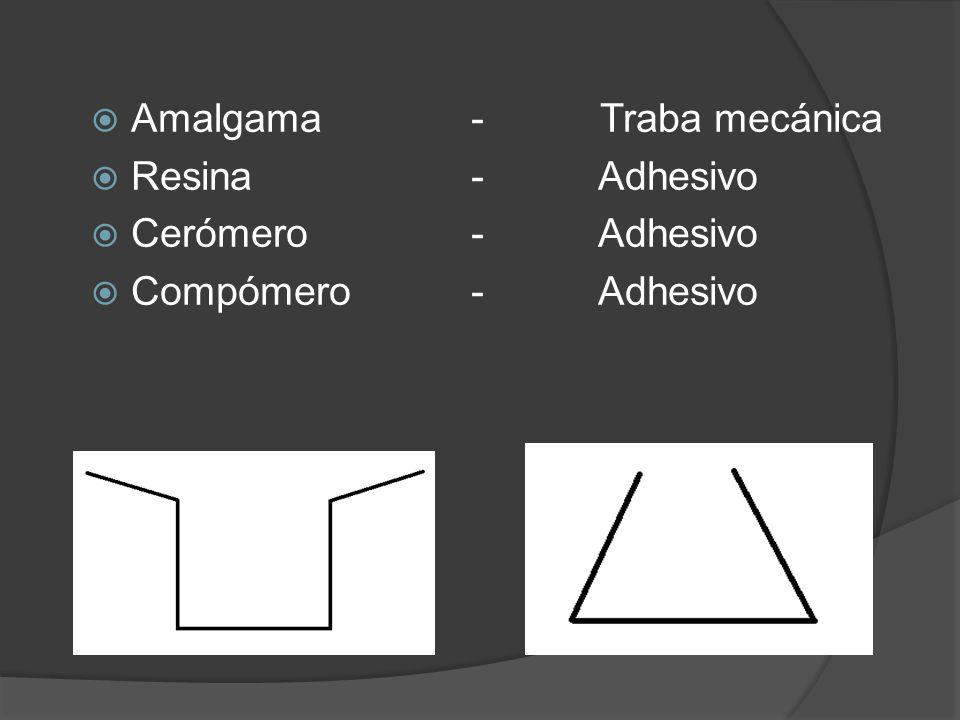 Amalgama- Traba mecánica Resina - Adhesivo Cerómero - Adhesivo Compómero - Adhesivo