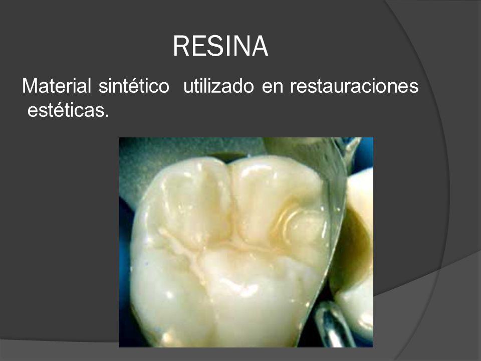 RESINA Material sintético utilizado en restauraciones estéticas.