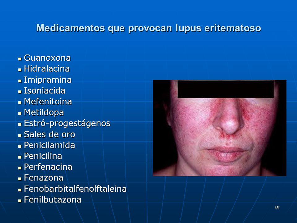 16 Medicamentos que provocan lupus eritematoso Guanoxona Guanoxona Hidralacina Hidralacina Imipramina Imipramina Isoniacida Isoniacida Mefenitoina Mef
