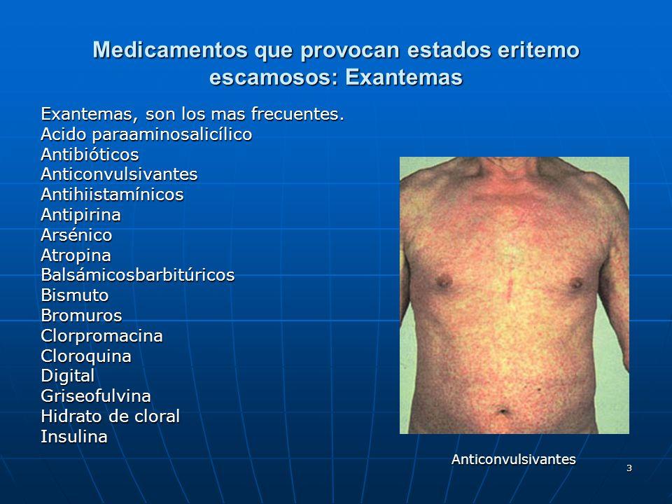 3 Medicamentos que provocan estados eritemo escamosos: Exantemas Exantemas, son los mas frecuentes. Acido paraaminosalicílico AntibióticosAnticonvulsi