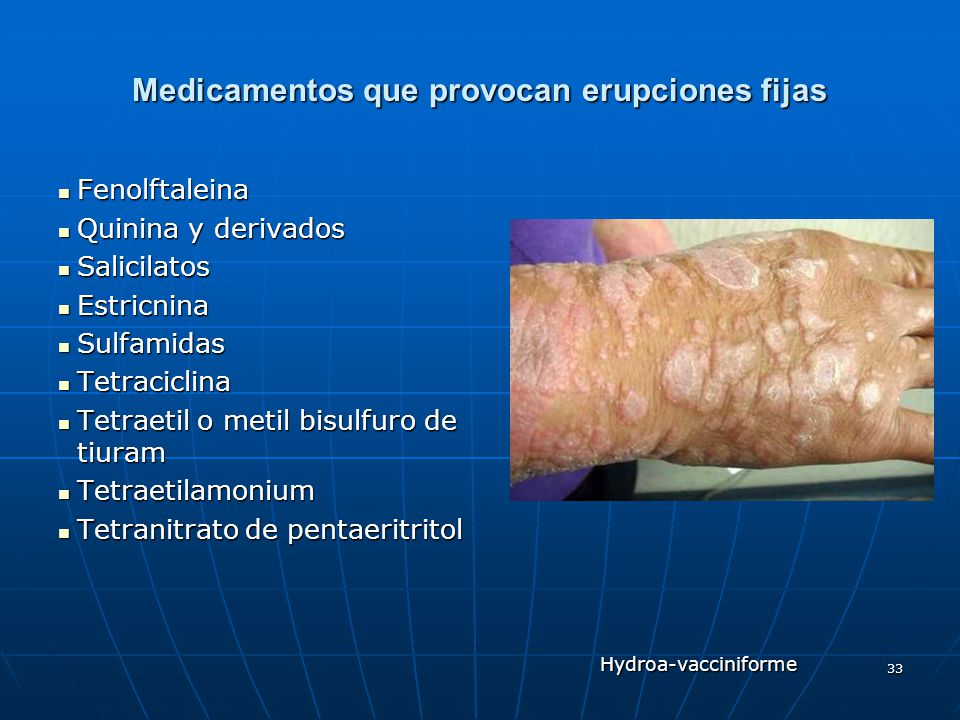 33 Medicamentos que provocan erupciones fijas Fenolftaleina Fenolftaleina Quinina y derivados Quinina y derivados Salicilatos Salicilatos Estricnina E