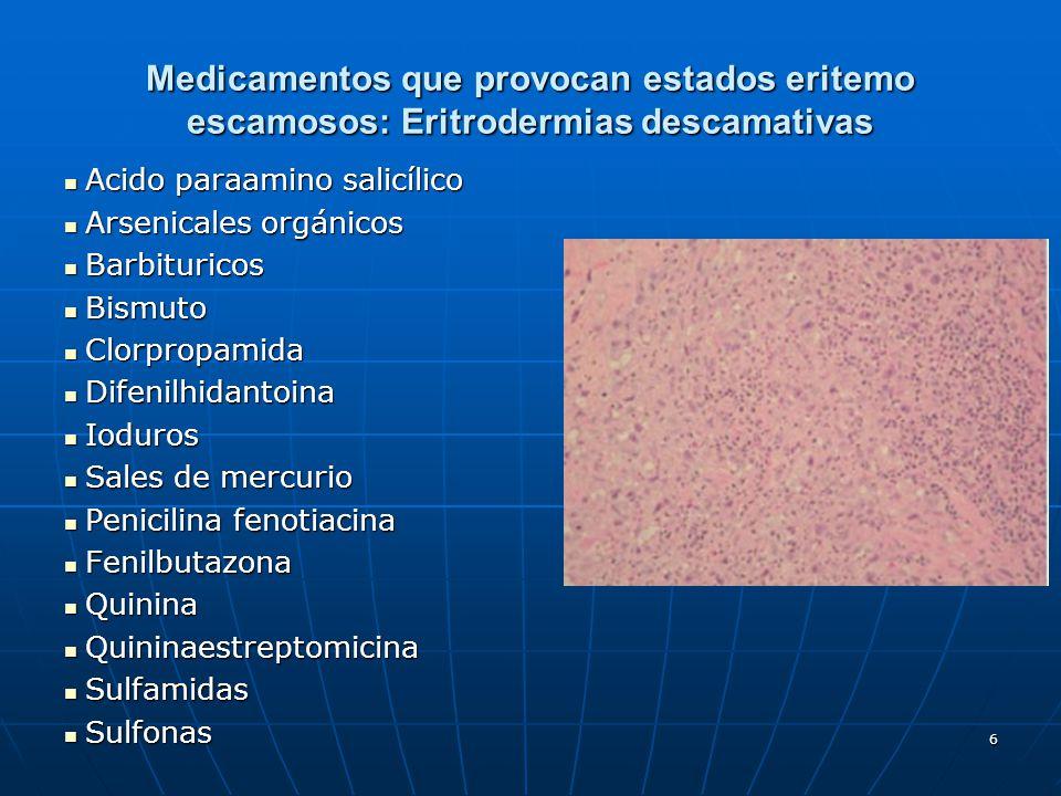 6 Medicamentos que provocan estados eritemo escamosos: Eritrodermias descamativas Acido paraamino salicílico Acido paraamino salicílico Arsenicales or