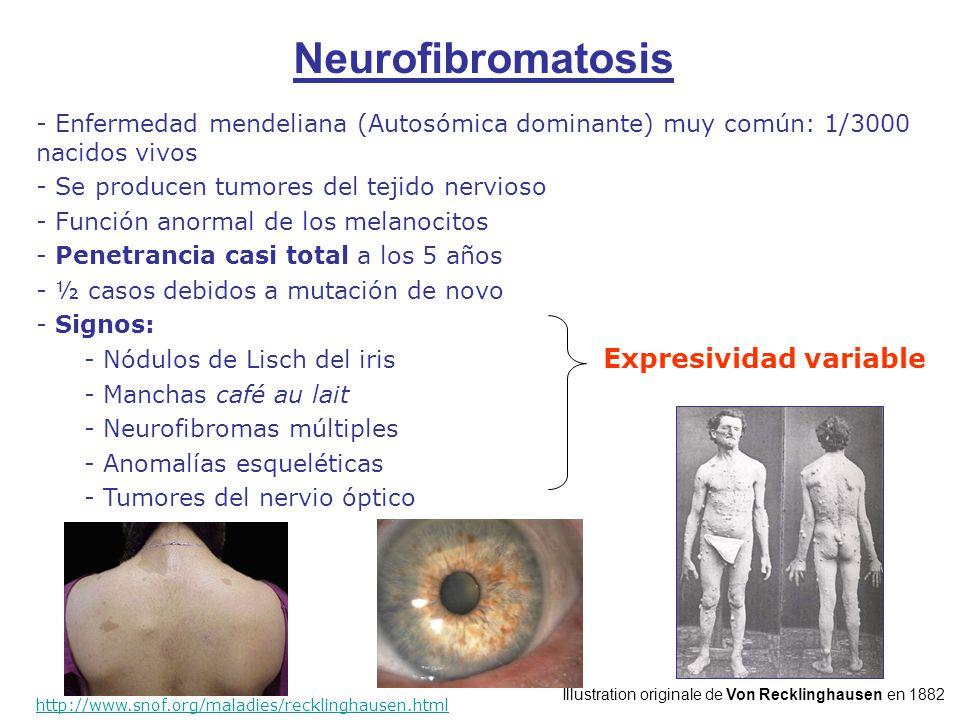 - Enfermedad mendeliana (Autosómica dominante) muy común: 1/3000 nacidos vivos - Se producen tumores del tejido nervioso - Función anormal de los melanocitos - Penetrancia casi total a los 5 años - ½ casos debidos a mutación de novo - Signos: - Nódulos de Lisch del iris - Manchas café au lait - Neurofibromas múltiples - Anomalías esqueléticas - Tumores del nervio óptico http://www.snof.org/maladies/recklinghausen.html Expresividad variable Neurofibromatosis Illustration originale de Von Recklinghausen en 1882