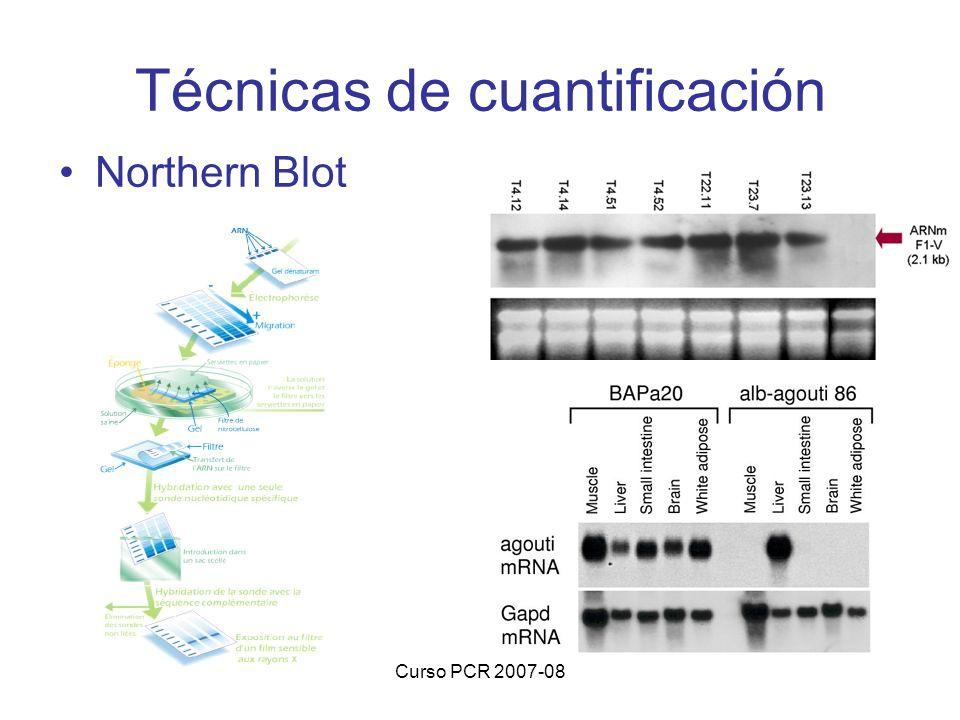 Curso PCR 2007-08 Técnicas de cuantificación Northern Blot