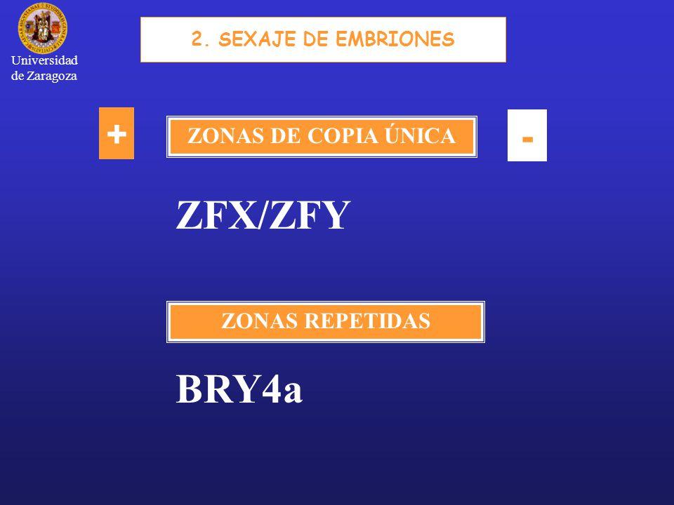 ZONAS DE COPIA ÚNICA ZONAS REPETIDAS + - 2.