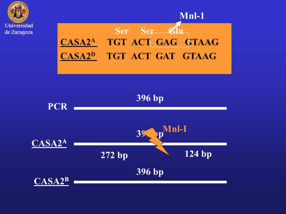 Universidad de Zaragoza 396 bp PCR 396 bp CASA2 A 396 bp CASA2 B Mnl-I 272 bp 124 bp Ser Ser Glu CASA2 A TGT ACT GAG GTAAG CASA2 D TGT ACT GAT GTAAG Mnl-1
