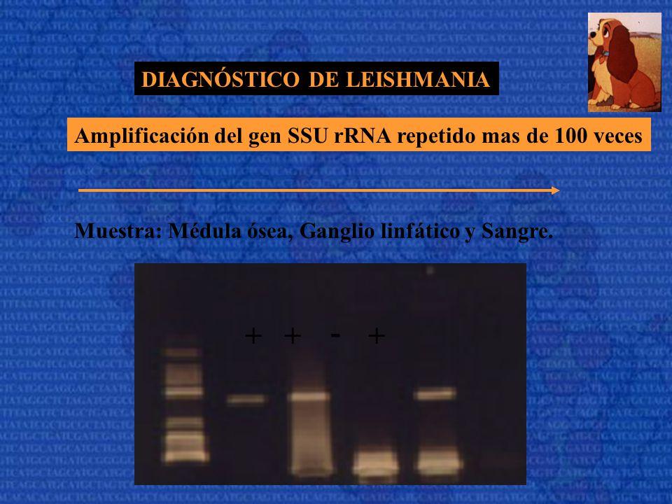DIAGNÓSTICO DE LEISHMANIA Amplificación del gen SSU rRNA repetido mas de 100 veces Muestra: Médula ósea, Ganglio linfático y Sangre. +++ -
