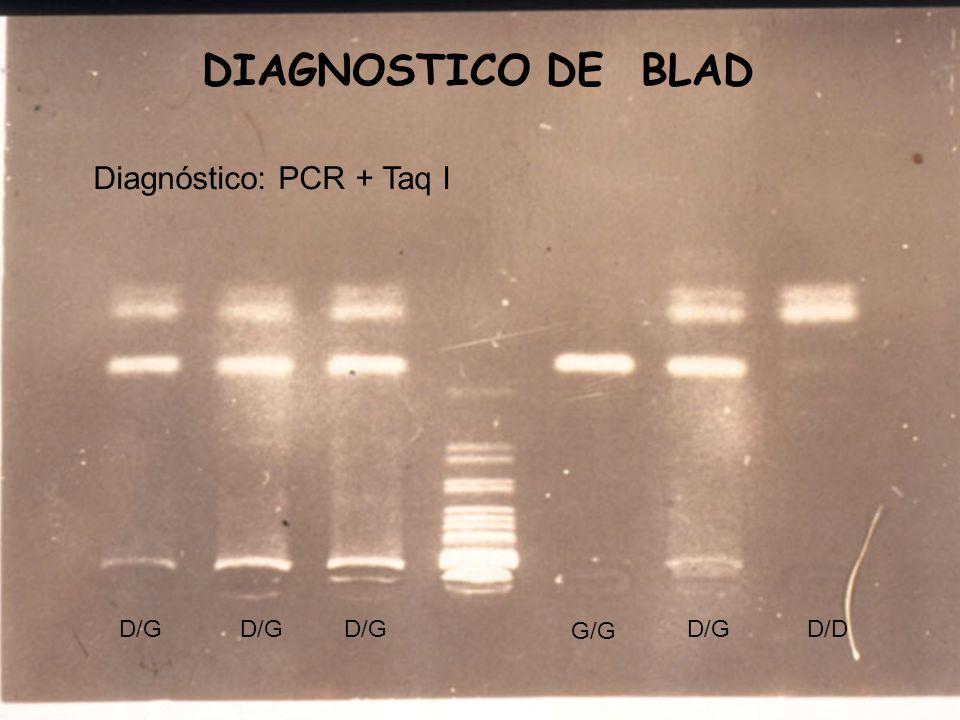 DIAGNOSTICO DE BLAD Diagnóstico: PCR + Taq I G/G D/G D/D
