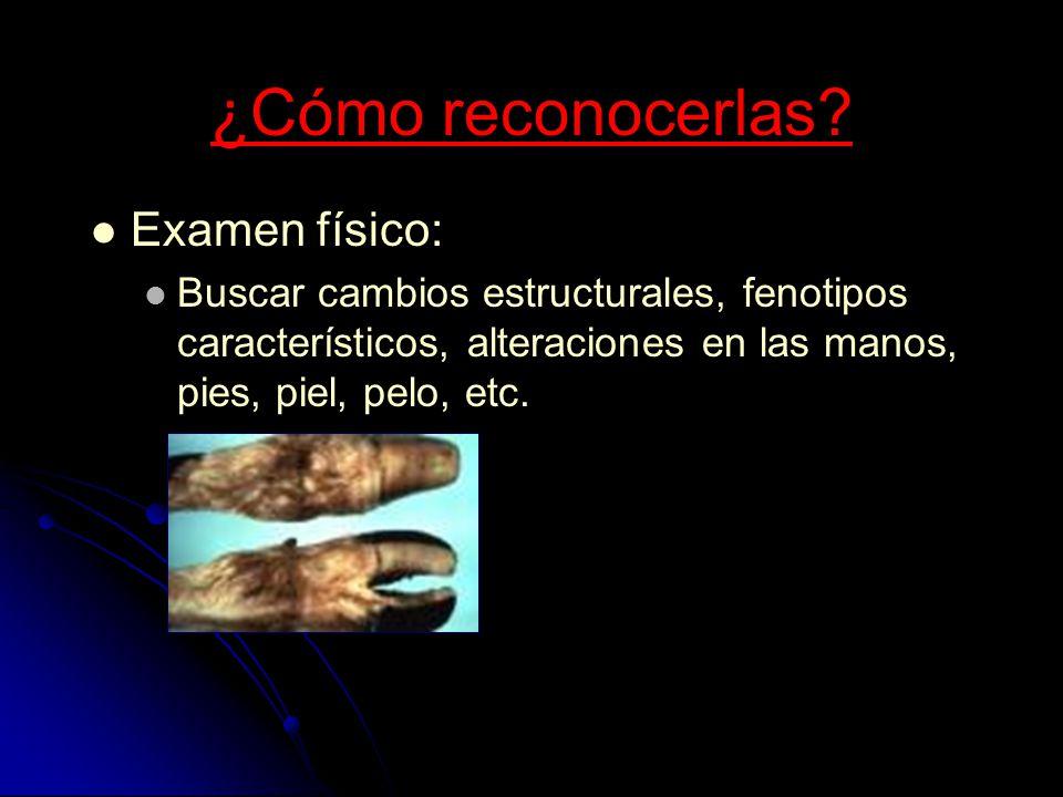 ¿Cómo reconocerlas? Examen físico: Buscar cambios estructurales, fenotipos característicos, alteraciones en las manos, pies, piel, pelo, etc.