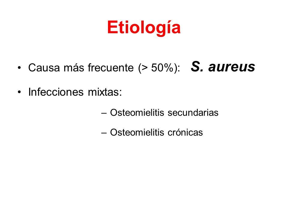 Etiología Causa más frecuente (> 50%): S.