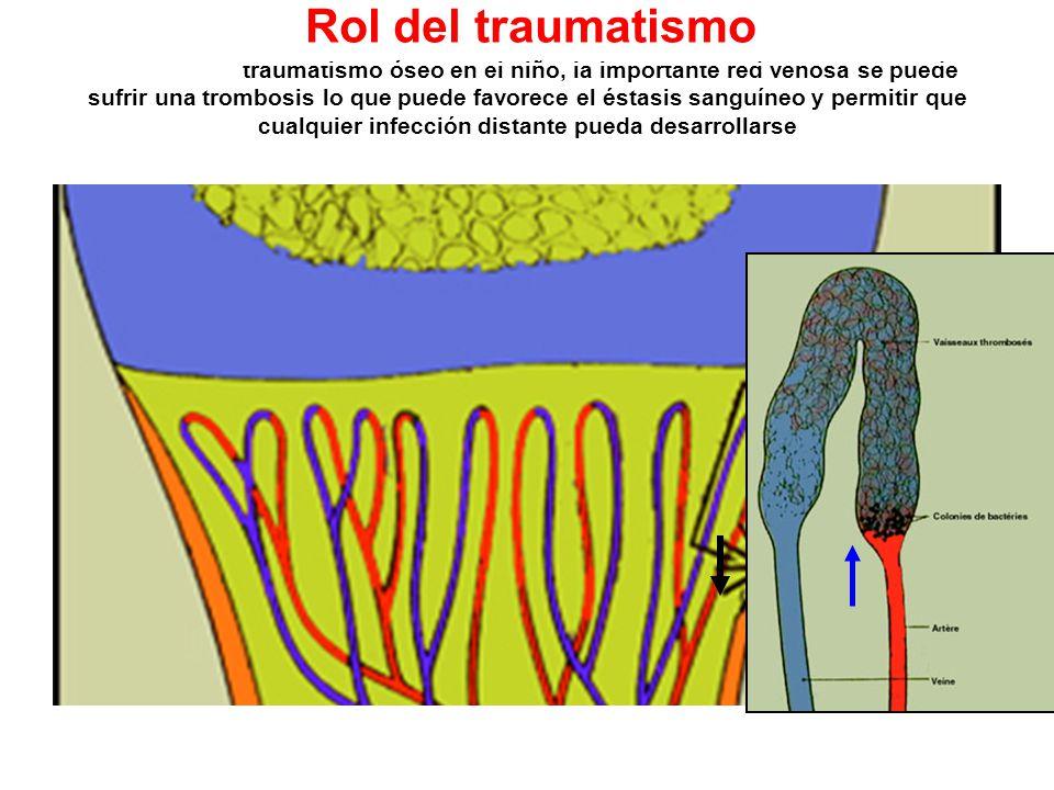 Luego de un traumatismo óseo en el niño, la importante red venosa se puede sufrir una trombosis lo que puede favorece el éstasis sanguíneo y permitir que cualquier infección distante pueda desarrollarse Rol del traumatismo