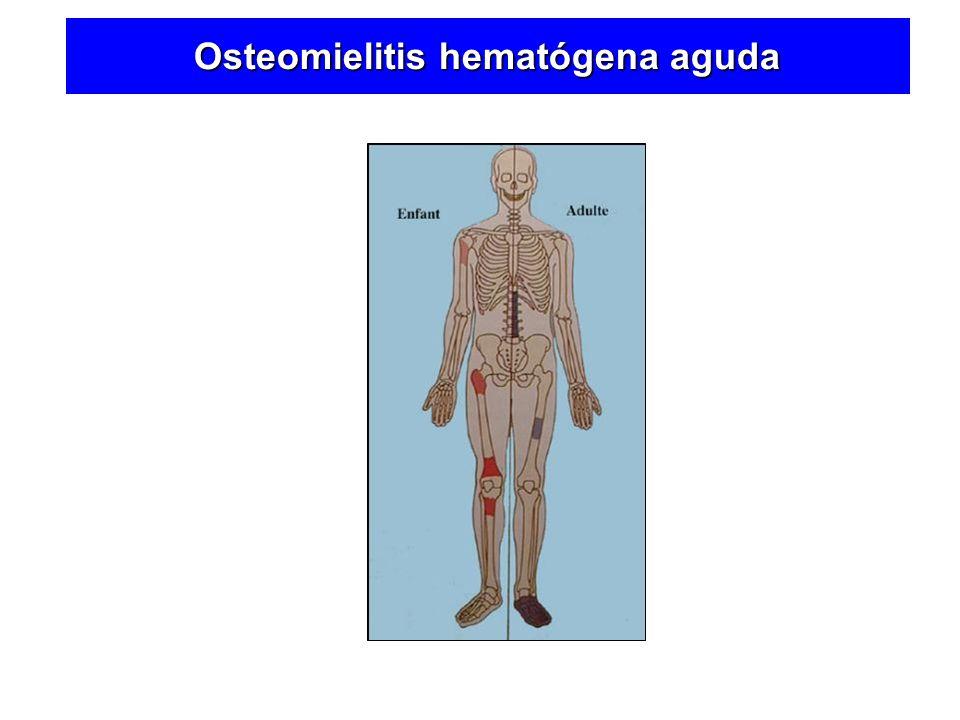 En el Niño Rodilla Cadera Hombro Osteomielitis hematógena aguda
