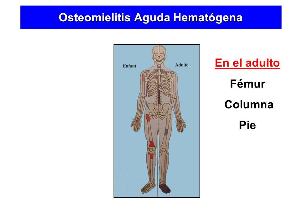 En el Niño Rodilla Cadera Hombro En el adulto Fémur Columna Pie Osteomielitis Aguda Hematógena