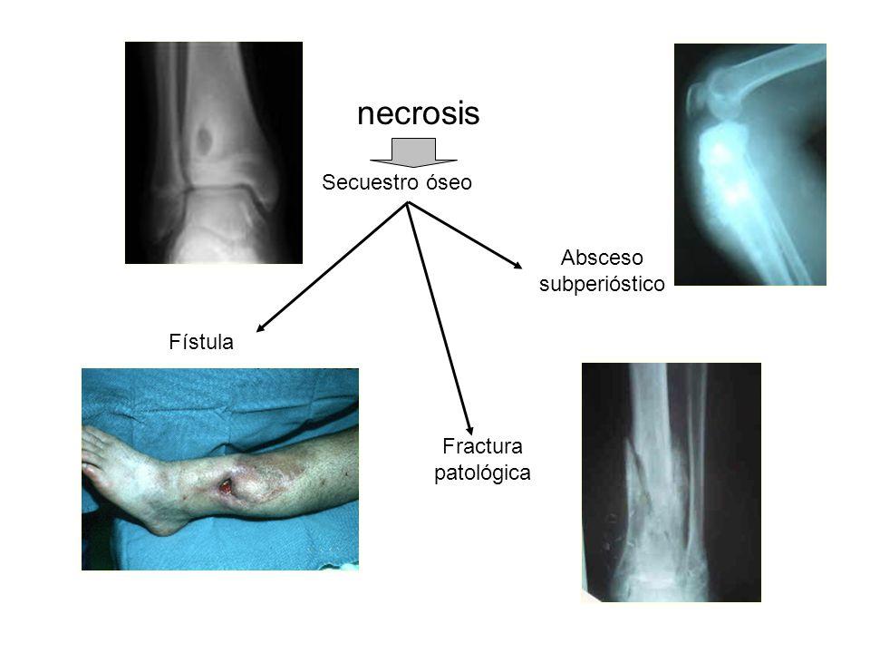 Secuestro óseo Absceso subperióstico Fístula Fractura patológica necrosis