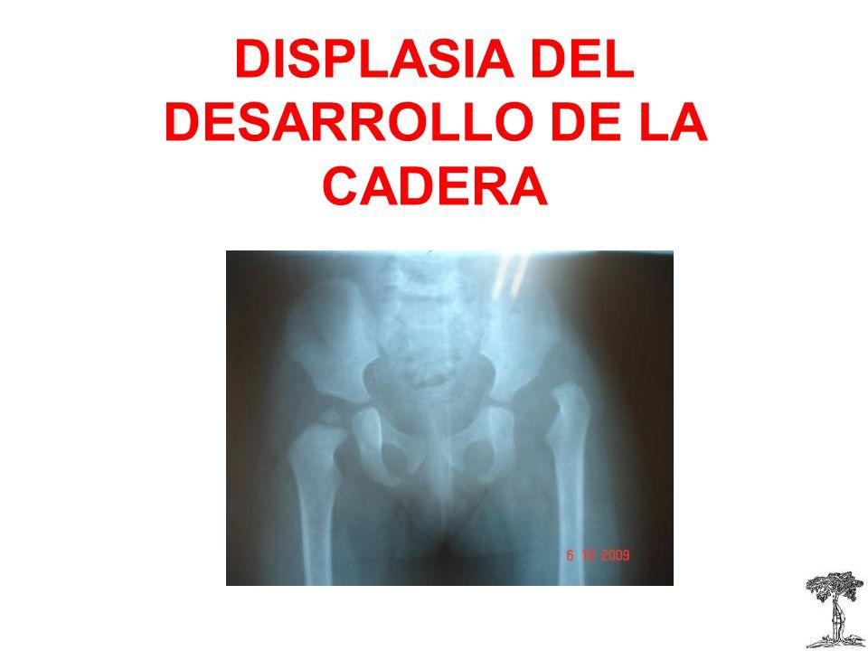 DISPLASIA DEL DESARROLLO DE LA CADERA