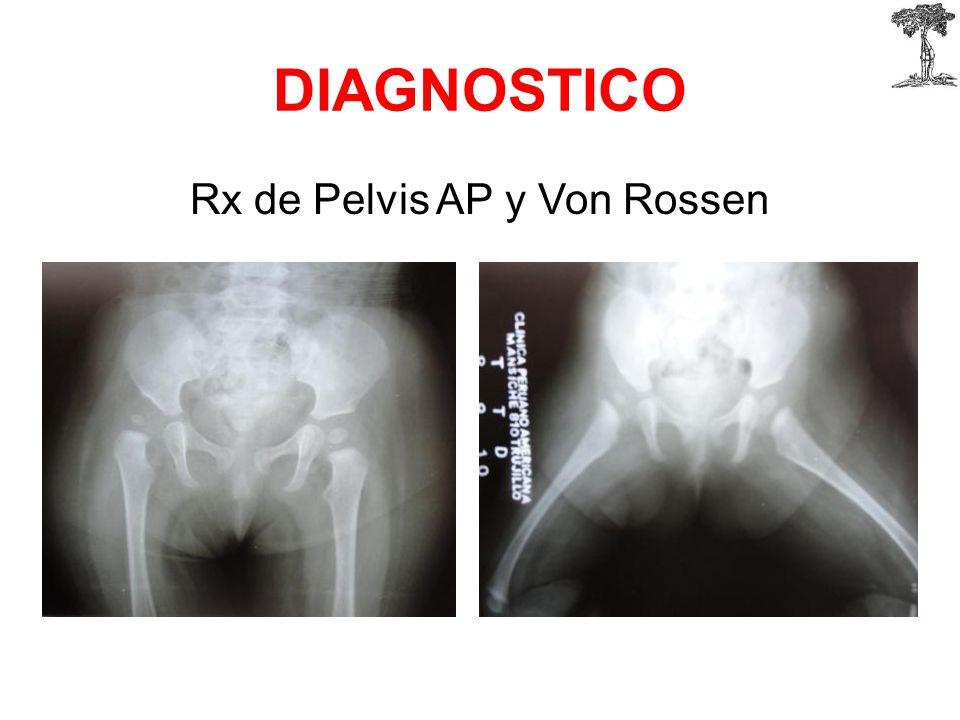 Rx de Pelvis AP y Von Rossen
