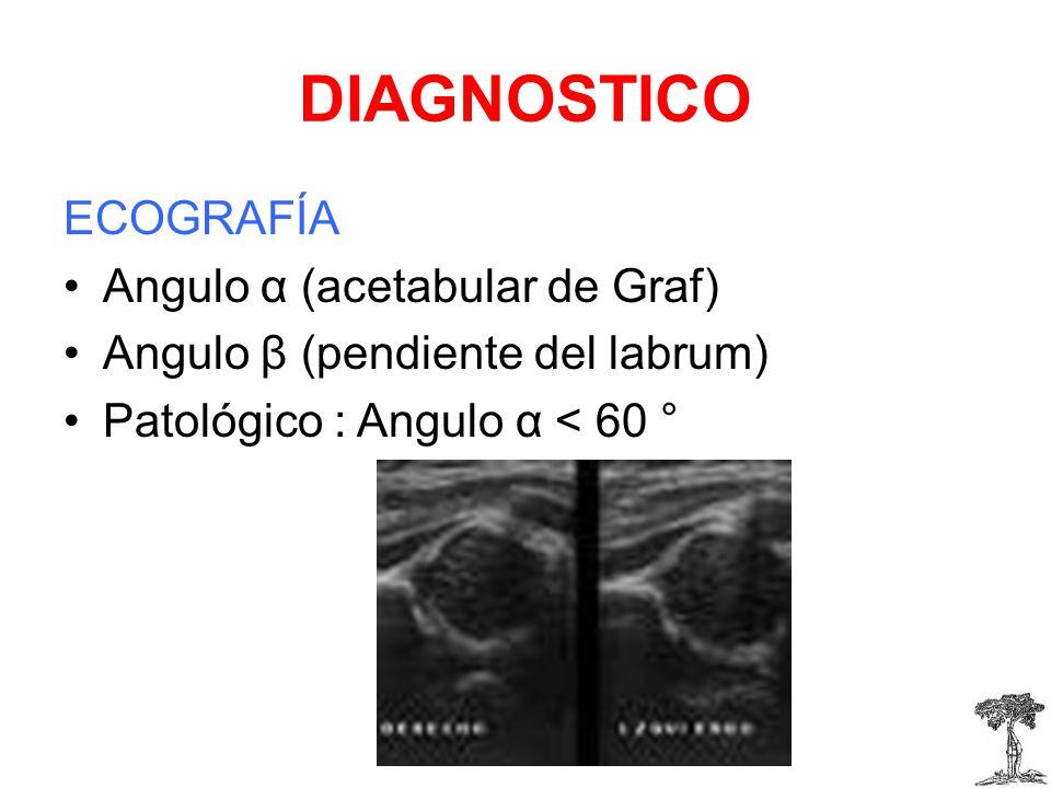 DIAGNOSTICO ECOGRAFÍA Angulo α (acetabular de Graf) Angulo β (pendiente del labrum) Patológico : Angulo α < 60 °