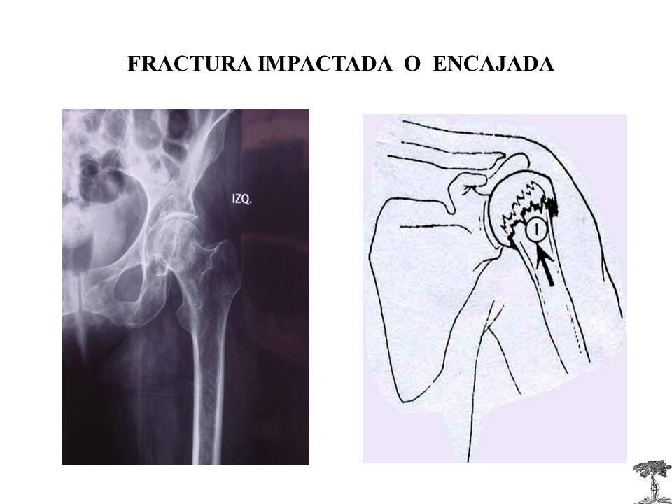 FRACTURA IMPACTADA O ENCAJADA