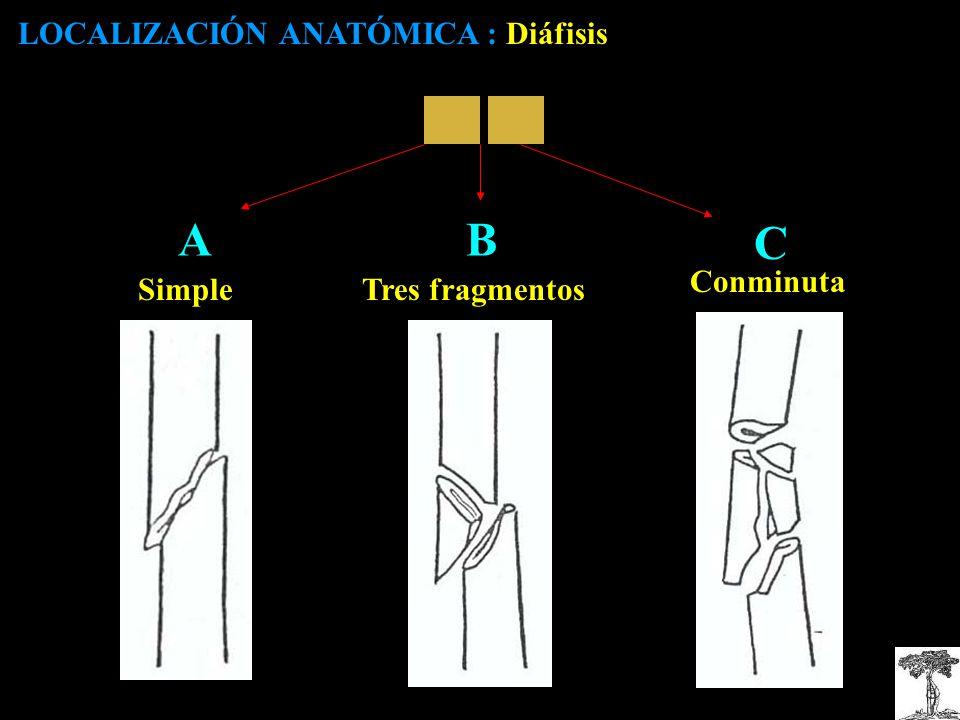 AB C LOCALIZACIÓN ANATÓMICA : Diáfisis Tres fragmentosSimple Conminuta