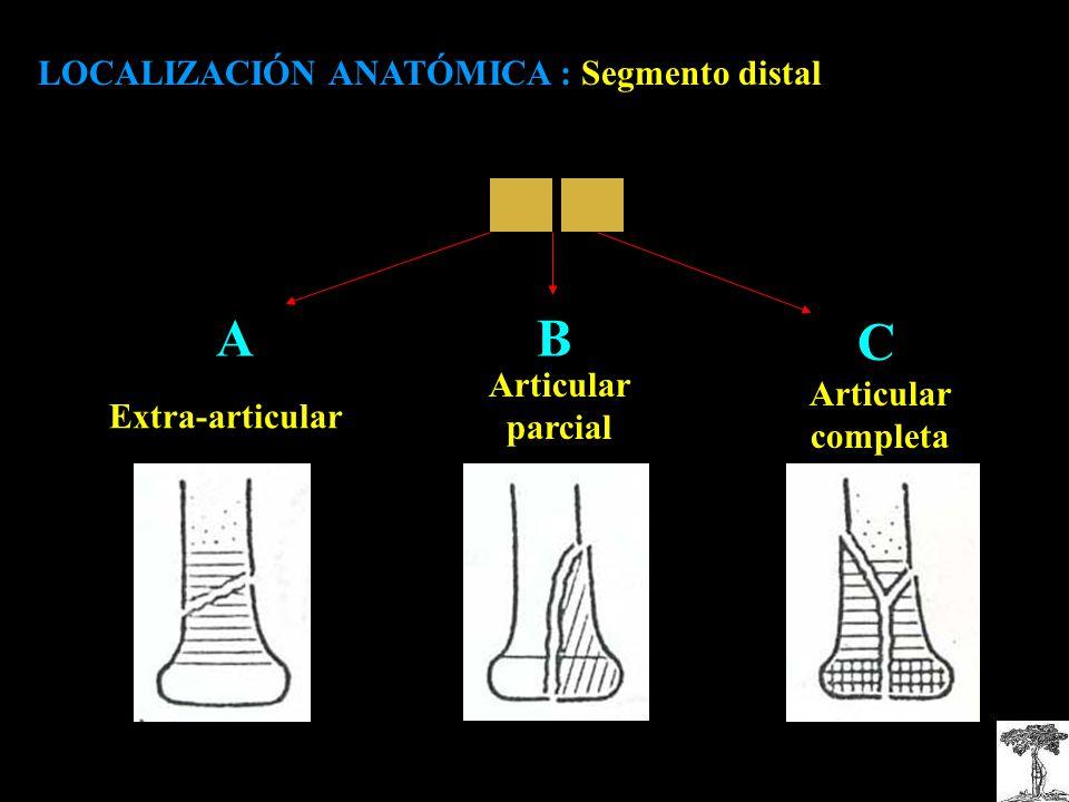 AB C Articular parcial LOCALIZACIÓN ANATÓMICA : Segmento distal Extra-articular Articular completa