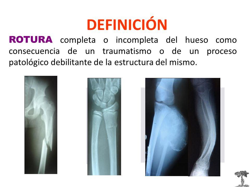 DEFINICIÓN ROTURA completa o incompleta del hueso como consecuencia de un traumatismo o de un proceso patológico debilitante de la estructura del mismo.