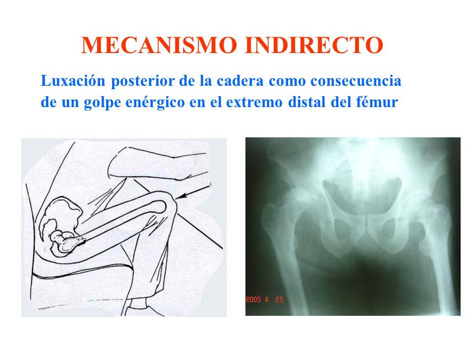 Luxación posterior de la cadera como consecuencia de un golpe enérgico en el extremo distal del fémur MECANISMO INDIRECTO