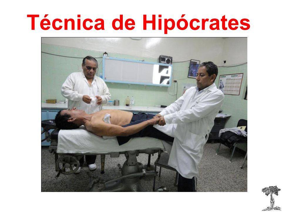 Técnica de Hipócrates