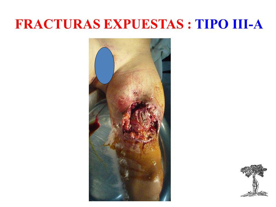 FRACTURAS EXPUESTAS : TIPO III-A