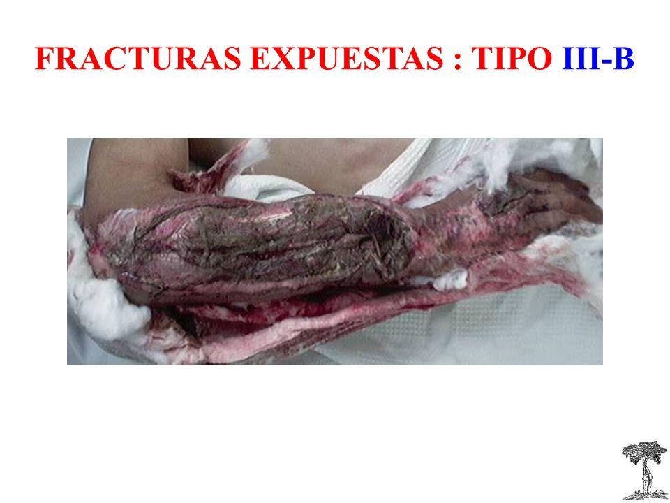 FRACTURAS EXPUESTAS : TIPO III-B