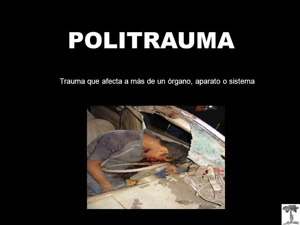 POLITRAUMA Trauma que afecta a más de un órgano, aparato o sistema