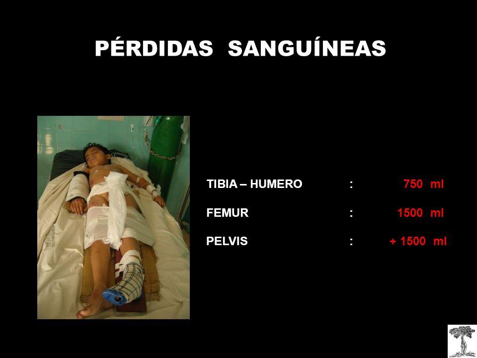 TIBIA – HUMERO: 750 ml FEMUR: 1500 ml PELVIS : + 1500 ml PÉRDIDAS SANGUÍNEAS