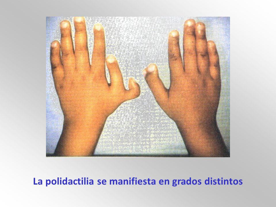 La polidactilia se manifiesta en grados distintos