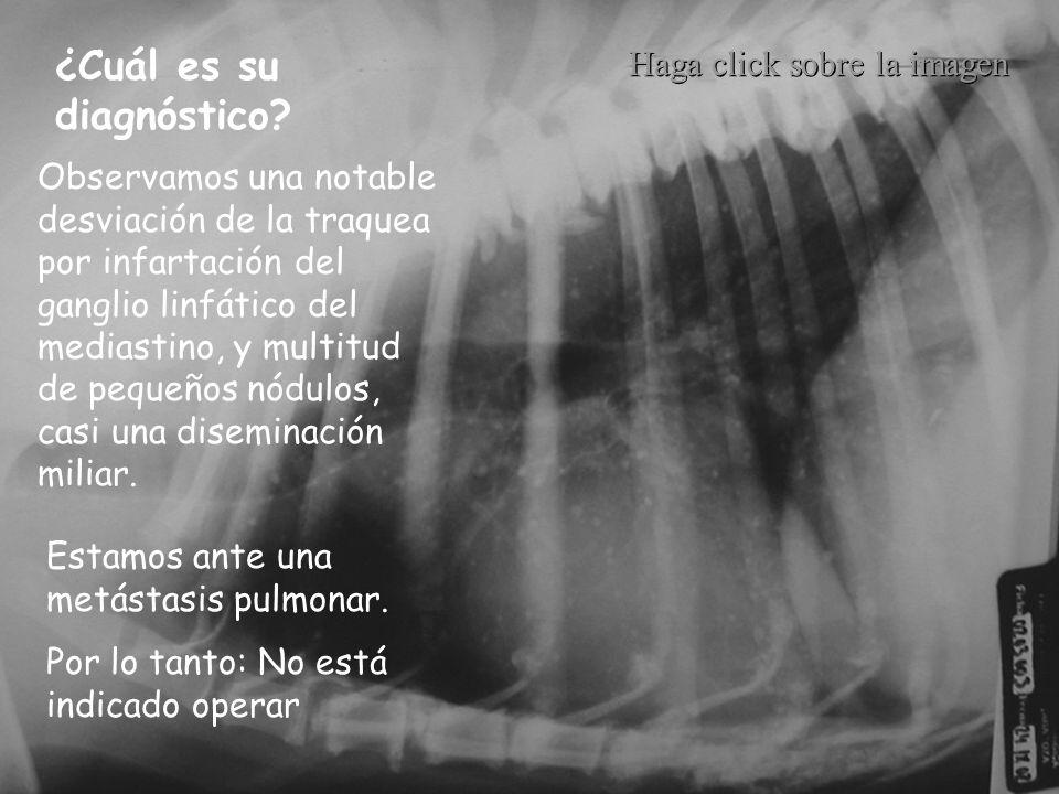 Observamos una notable desviación de la traquea por infartación del ganglio linfático del mediastino, y multitud de pequeños nódulos, casi una disemin