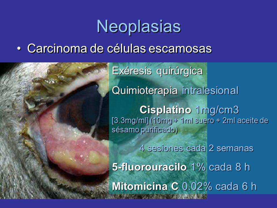 Neoplasias Carcinoma de células escamosas Exéresis quirúrgica Quimioterapia intralesional Cisplatino 1mg/cm3 [3.3mg/ml] (10mg + 1ml suero + 2ml aceite de sésamo purificado) 4 sesiones cada 2 semanas 5-fluorouracilo 1% cada 8 h Mitomicina C 0.02% cada 6 h