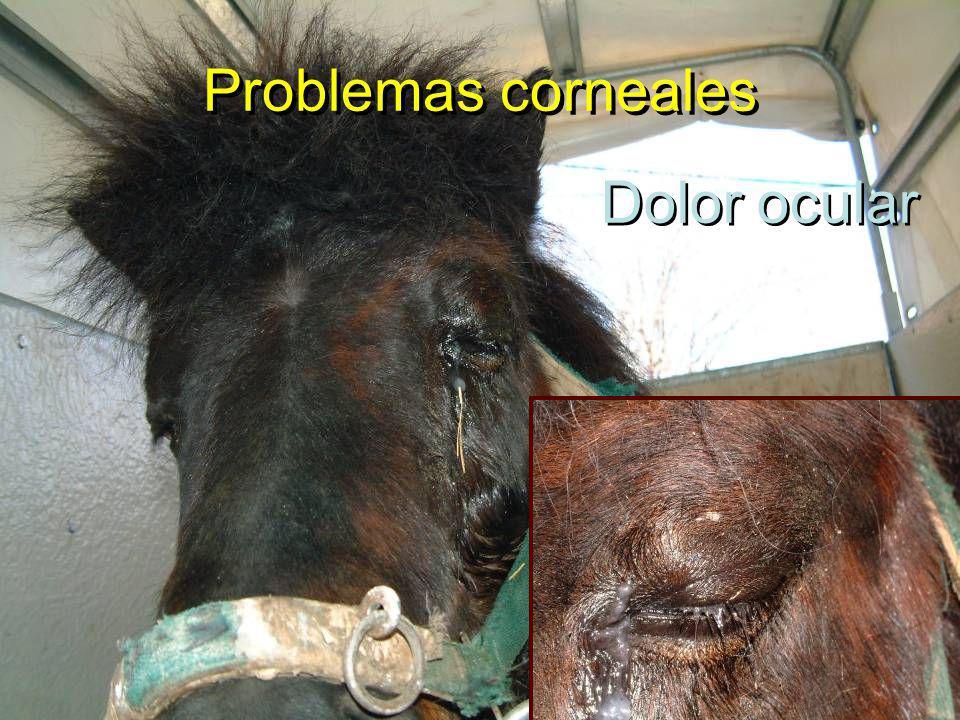 Dolor ocular Problemas corneales