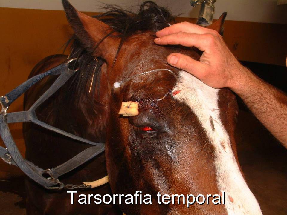 Tarsorrafia temporal