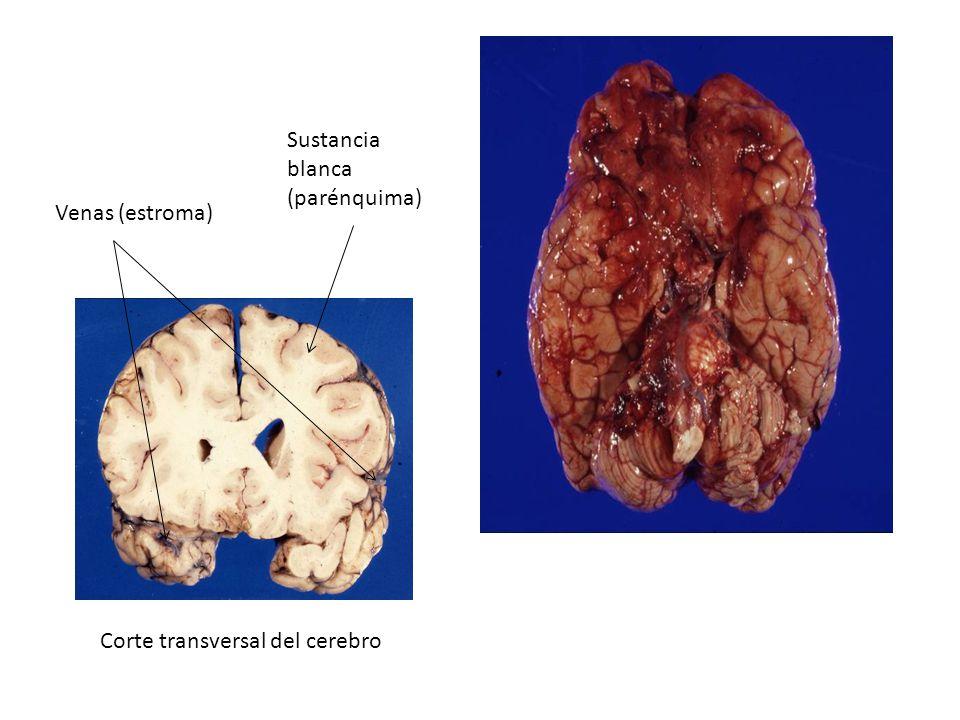 Corte transversal del cerebro Sustancia blanca (parénquima) Venas (estroma)