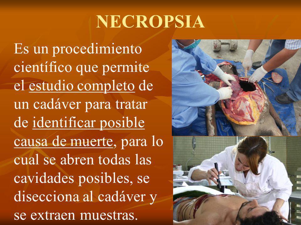 NECROPSIA Es un procedimiento científico que permite el estudio completo de un cadáver para tratar de identificar posible causa de muerte, para lo cua