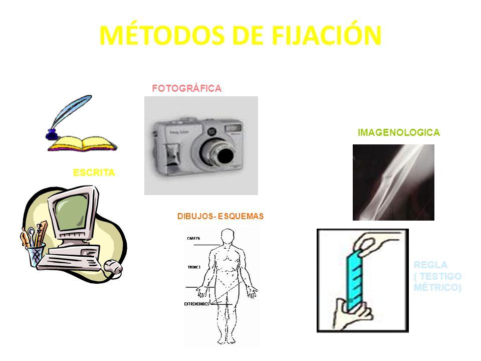 MÉTODOS DE FIJACIÓN ESCRITA FOTOGRÁFICA DIBUJOS- ESQUEMAS IMAGENOLOGICA REGLA ( TESTIGO MÉTRICO)