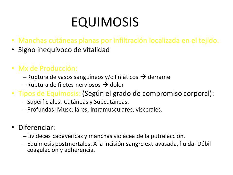 EQUIMOSIS Manchas cutáneas planas por infiltración localizada en el tejido.