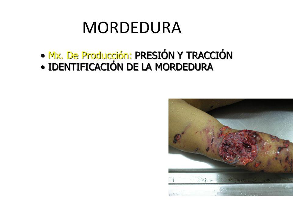 MORDEDURA Mx. De Producción: PRESIÓN Y TRACCIÓN Mx. De Producción: PRESIÓN Y TRACCIÓN IDENTIFICACIÓN DE LA MORDEDURA IDENTIFICACIÓN DE LA MORDEDURA