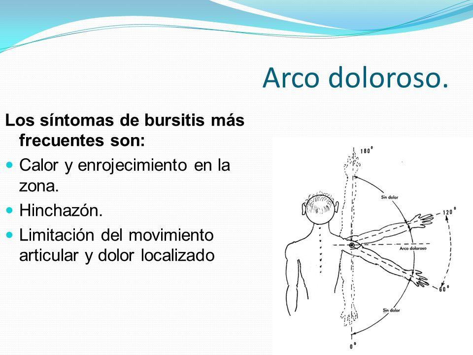 Arco doloroso. Los síntomas de bursitis más frecuentes son: Calor y enrojecimiento en la zona. Hinchazón. Limitación del movimiento articular y dolor