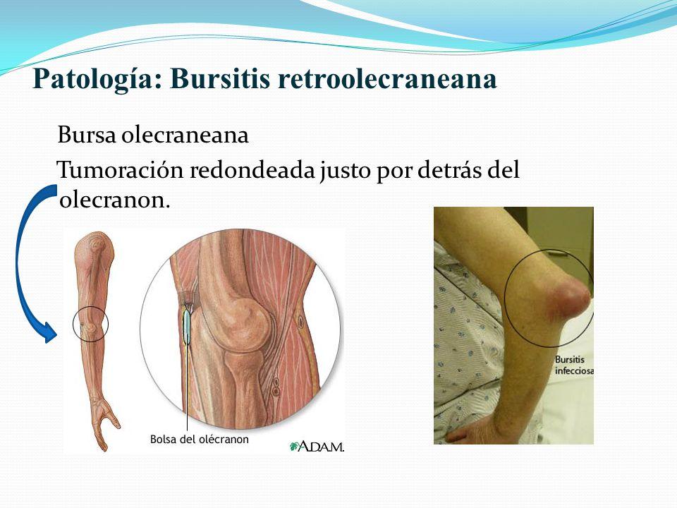 Patología: Bursitis retroolecraneana Bursa olecraneana Tumoración redondeada justo por detrás del olecranon.
