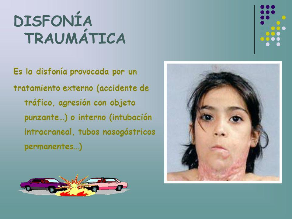 DISFONÍA TRAUMÁTICA Es la disfonía provocada por un tratamiento externo (accidente de tráfico, agresión con objeto punzante…) o interno (intubación in