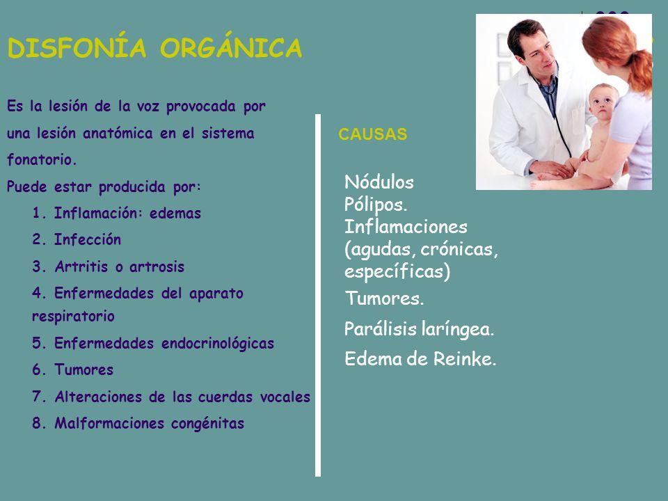 DISFONÍA ORGÁNICA Es la lesión de la voz provocada por una lesión anatómica en el sistema fonatorio. Puede estar producida por: 1. Inflamación: edemas